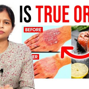 Is Fish Good For Psoriasis - Dr  Swapna Priya | Which Food Good For Psoriasis | Dermatologist